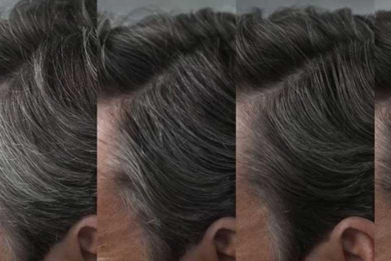 روش هایی برای نداشتن مو های سفید